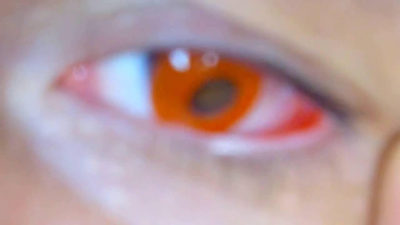 lentes vermelhas cosplay baratas 89 o Par FRETE GRÁTIS TODO BRASIL.  BraziLentes f479339943