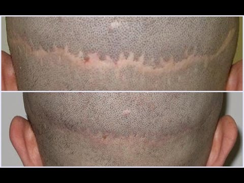 Bad Hair Transplant Scars Scalp Pigmentation With Vinci Hair