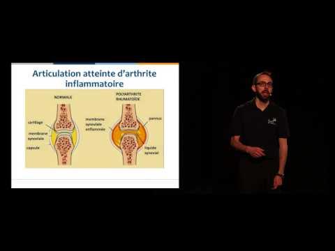 Achat Boswellia - Traitement Arthrite du poignet | Dr Jean-Paul Brutus
