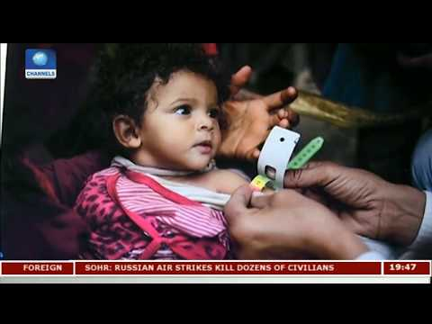 More Humanitarian Aid Is Urgently Needed In Yemen - UN |Diplomatic Channel|