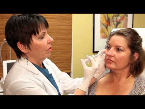 Radiesse Injections with Dr. Kathleen Griffin from The G Spa in Santa Barbara