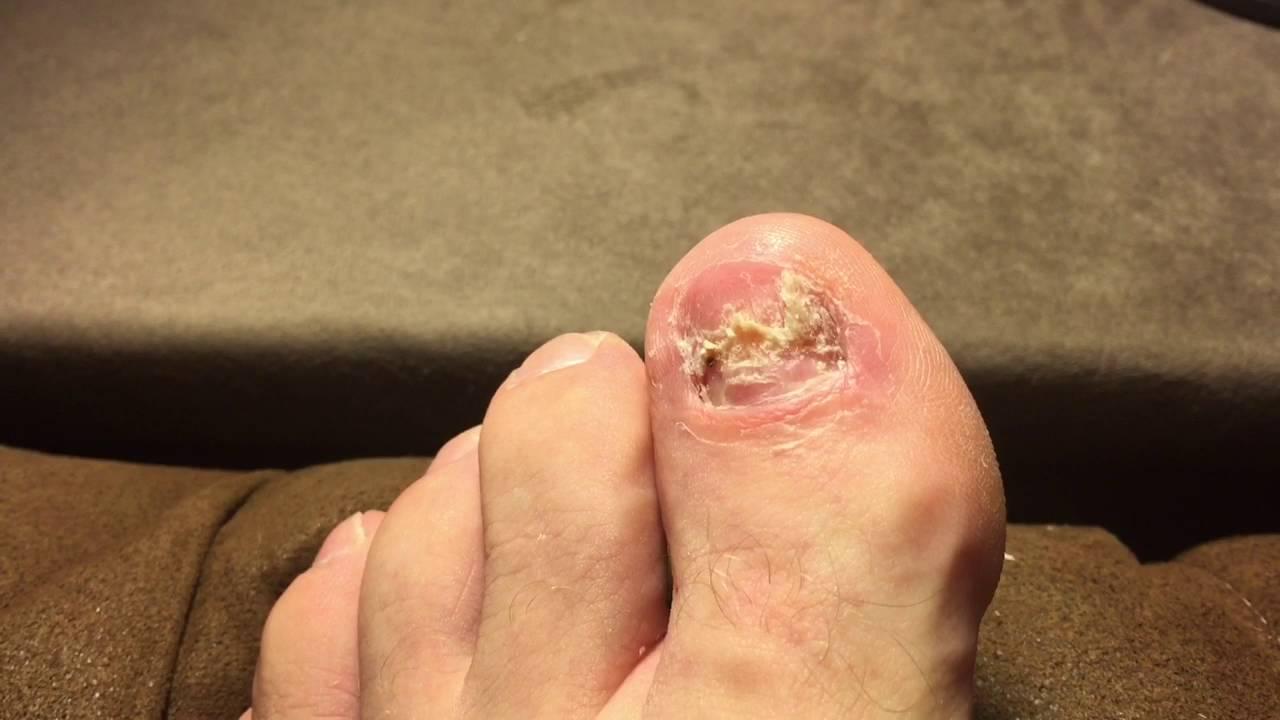 Long term test will removing my toenail permanently cure toenail youtube premium solutioingenieria Gallery