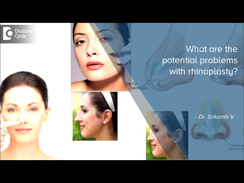Potential Problems With Rhinoplasty - Manipal Hospital
