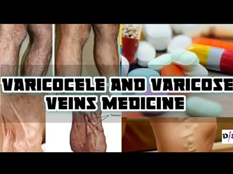 varicocele-and-varicose-veins-medicine-|-dobesil--500-|-home-remedies-|-without-surgery
