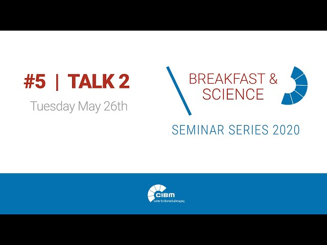 GlobalBioIm. Imaging as an inverse problem made easy - CIBM B&S N°5 - Talk 2 by Pol del Aguila Pla