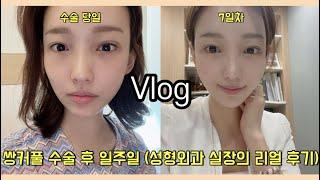 [직장인 브이로그]쌍커풀 수술 후 일주일 Vlog (쌍…