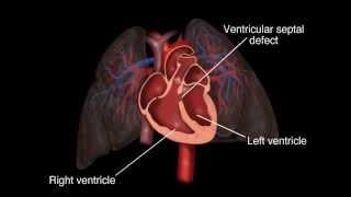 Ventricular Septal Defect (VSD)