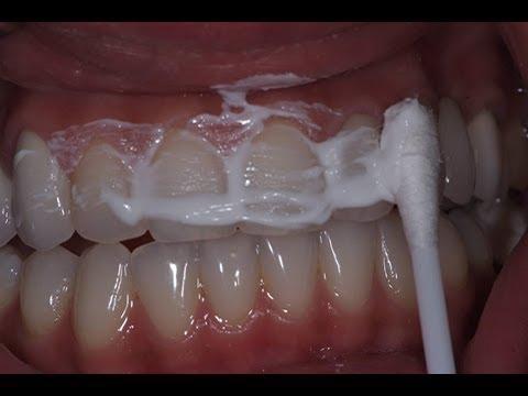 يزيل الأصفرار ويبيض الأسنان في 15 دقيقة مع هذه الوصفة التي لن يعطيها لك أي طبيب أسنان Youtube