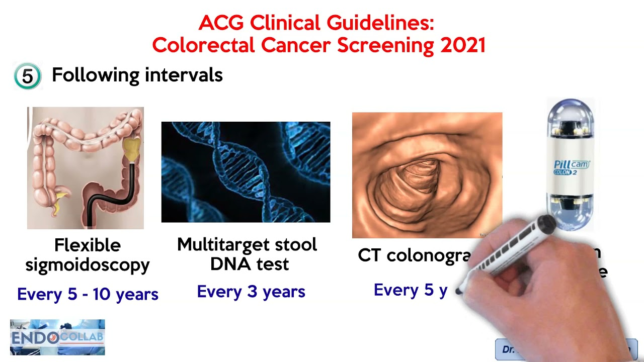 colorectal cancer in 2021