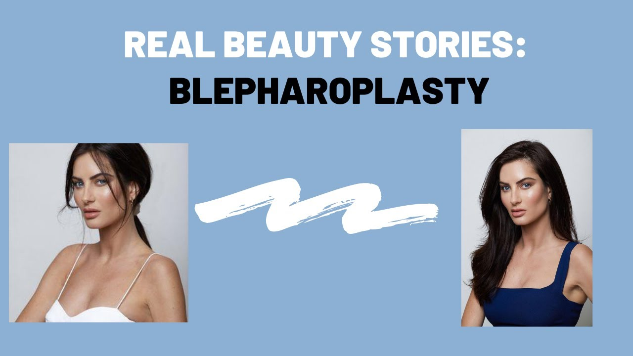 Real Beauty Story: Blepharoplasty Patient