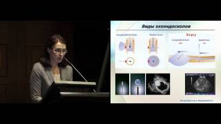 Бронхоскопическое исследование и эндобронхиальная ультрасонография в диагностике рака легкого(Бронхоскопическое исследование и эндобронхиальная ультрасонография в диагностике рака легкого к.м.н...., 2015-05-20T08:42:37.000Z)