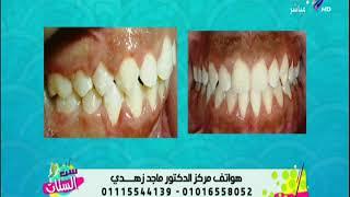 تعرف على أنواع تقويم الأسنان وطرق تركيبه بدون ألم مع مع د.ماجد زهدي | ست الستات