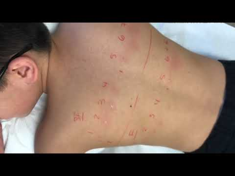 Allergy Skin Test For Shellfish And Fish
