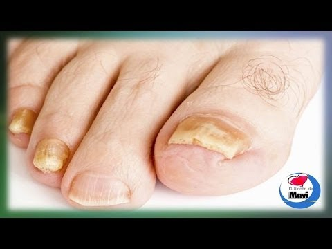 El medio para el tratamiento del hongo de las uñas en las manos