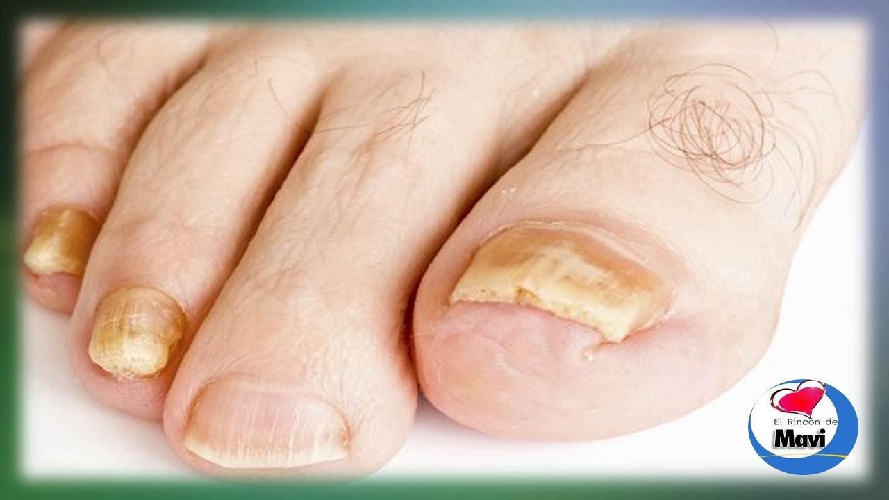 El hongo de las uñas en los pies los síntomas y el tratamiento de la foto