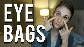 How to get rid of bags under eyes: Q&A with a dermatologist| Dr Dray