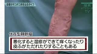 福島ドクターズTV「下肢静脈瘤(かしじょうみゃくりゅう)」