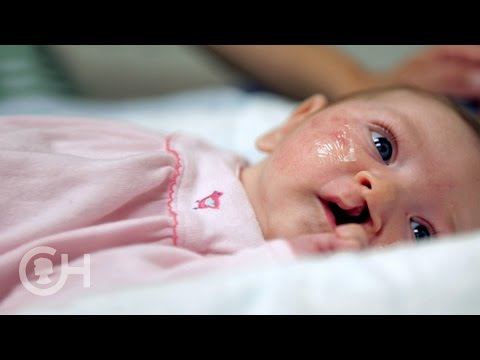 Explaining Cleft Lip and Palate (1 of 7)