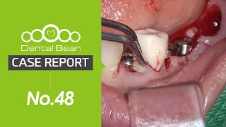 [ENG] Lower posterior implant placement on relaterly narrow ridge