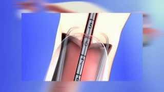 Frauenarztpraxis am Potsdamer Platz Berlin - Einlage mit Betäubung der Hormonspirale Jaydess