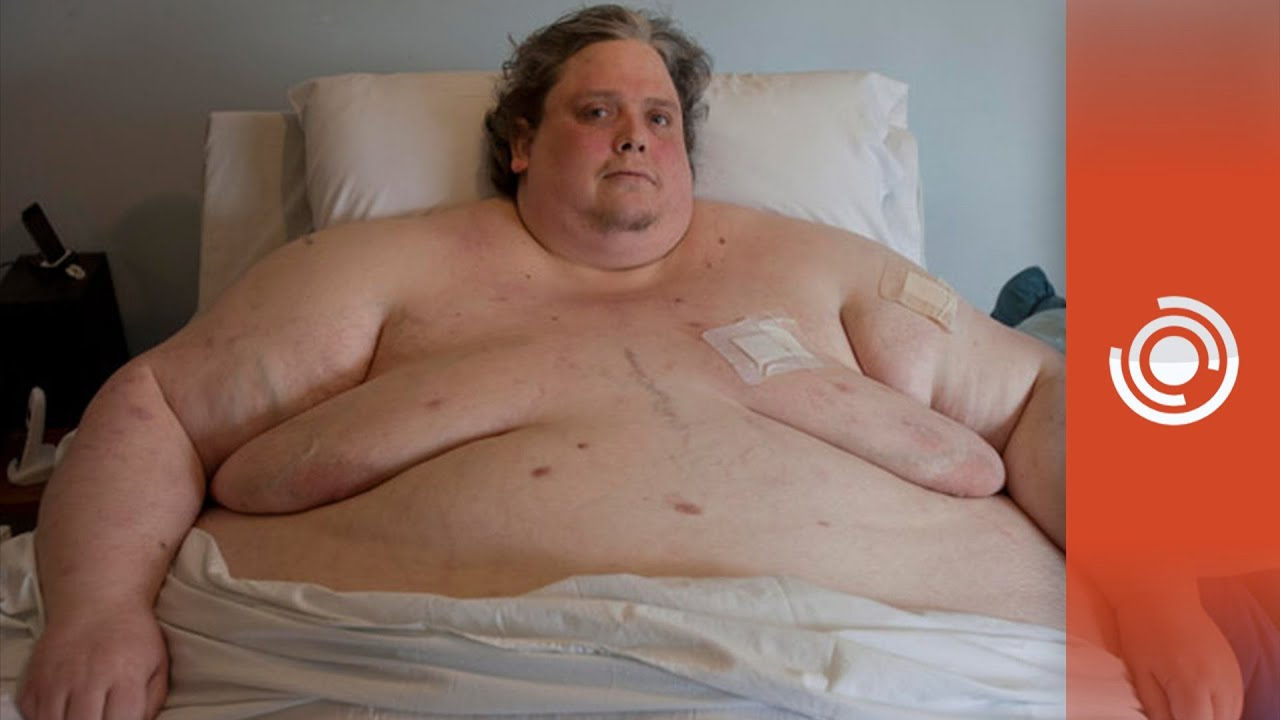 bj más gordo