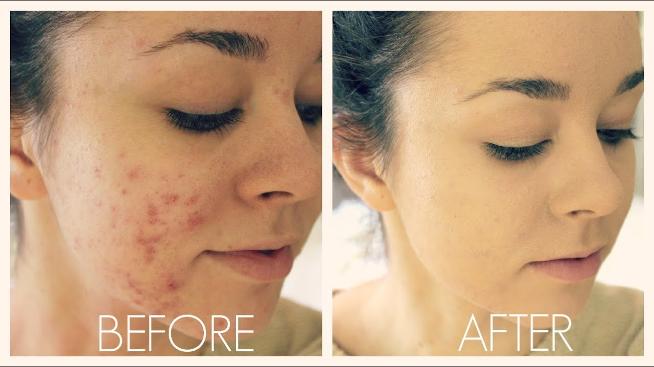 Acne Coverage Foundation Routine - YouTube