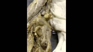 Анатомия. Мышцы и фасции нижней конечности. #3