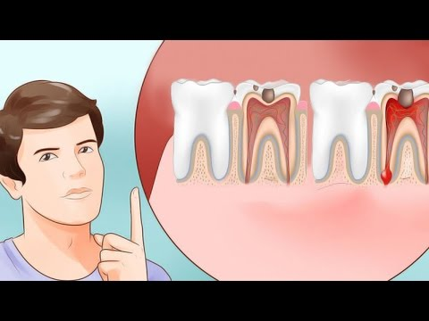 All Natural Toothache Remedies Your Dentist Doesn't Want You to Know About