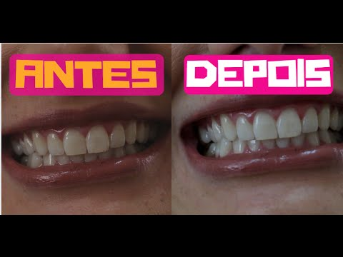 Veda 5 Como Clarear Os Dentes Clareamento Dental A Laser Youtube