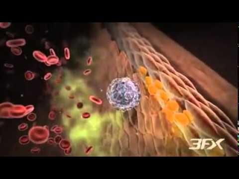 Diyabetik Periferik Arter Hastalığı ( Eğitim Videosu )