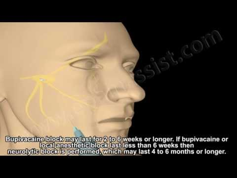 Know trigeminal neuralgia with new treatment.