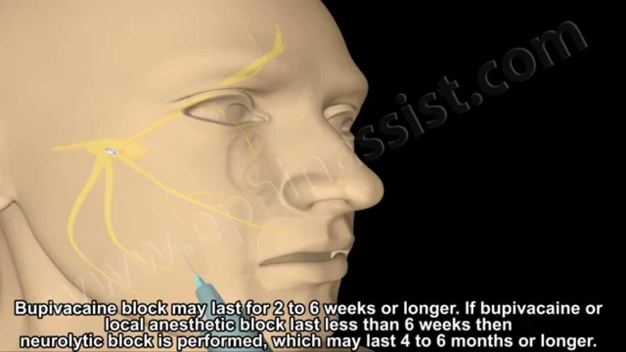 Facial neuralgia treatment can look
