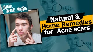 Natural & Home Remedies for Aroma Post Acne scars | Aroma Therapy | Nalam Nalam Ariga