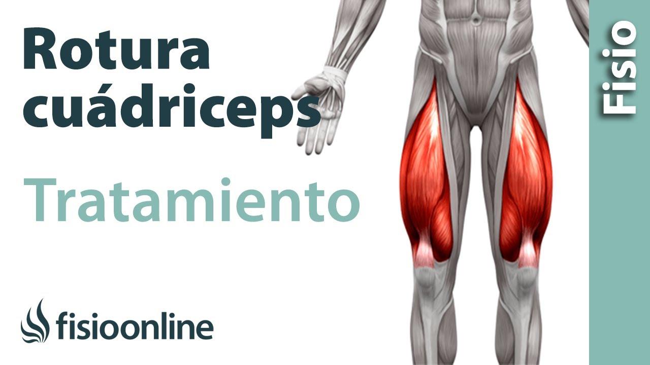 Rotura de fibras del cuádriceps - Tratamiento con ejercicios ...