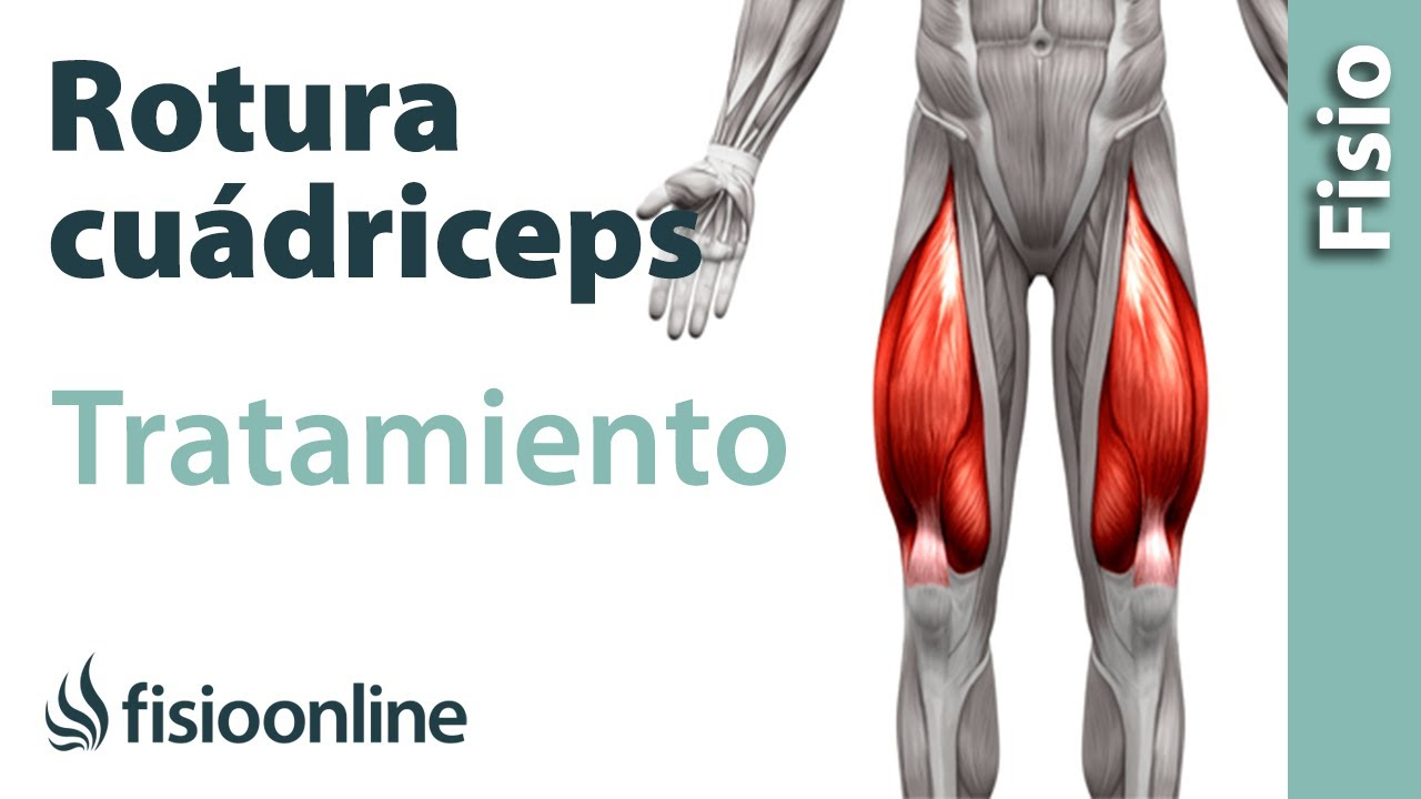 tratamiento para tiron muscular pierna