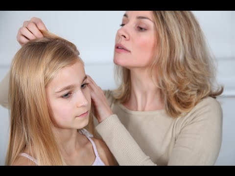 Lice Removal Roswell Ga | (770) 776-7913 | Lice Treatment Roswell Ga