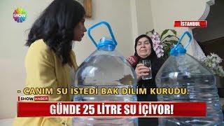 Günde 25 litre su içiyor!