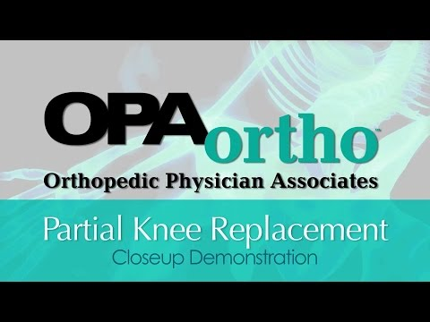 Partial Knee Replacement Video