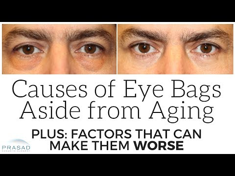 Causes of Puffy Eye Bags Aside from Aging, and Stress Factors than can Make Them Worse