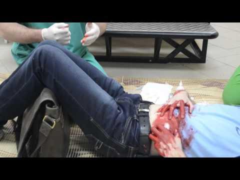 Оказание первой медицинской помощи при кровотечениях
