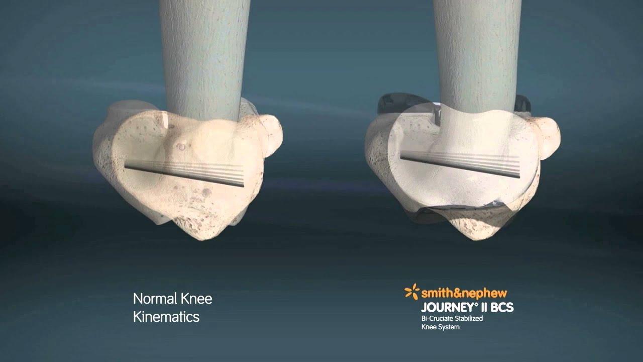 JOURNEY II Bi-Cruciate (BCS) Total Knee System