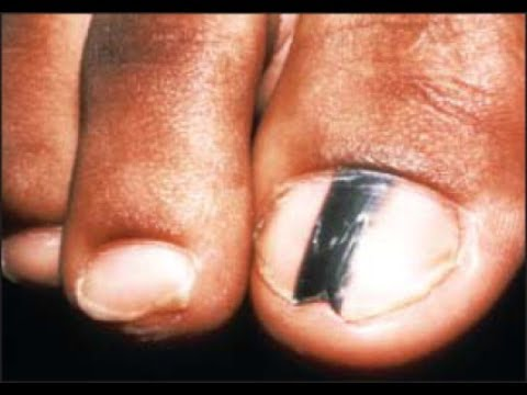 Are Black Toenail Lines & Streaks Safe? [Doctor Treatment]