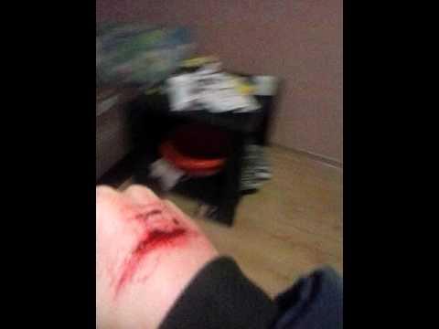 Рука в крові фото 728-675