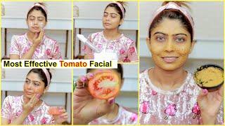 MOST EFFECTIVE TOMATO FACIAL For Skin Brightening- Remove Pigmentation, Pimple, Dark Spots