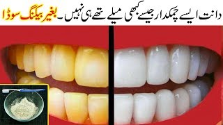 Teeth Whitening at Home | 100% Bright Yellow Teeth Naturally with Simple Home Remedy Urdu Hindi