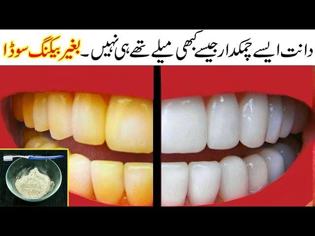 Teeth Whitening at Home   100% Bright Yellow Teeth Naturally with Simple Home Remedy Urdu Hindi