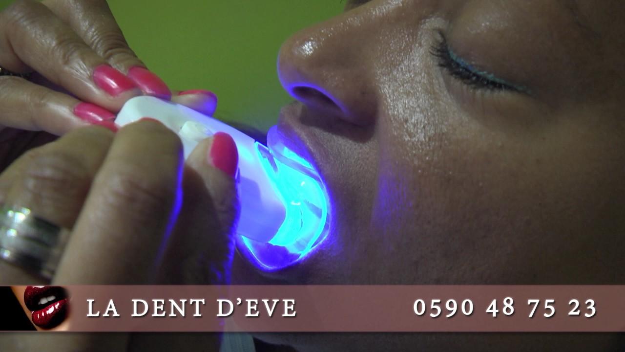 Spot : La Dent d'éve