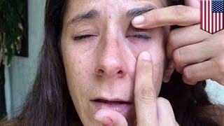 Kobieta przypadkiem skleja sobie powieki klejem