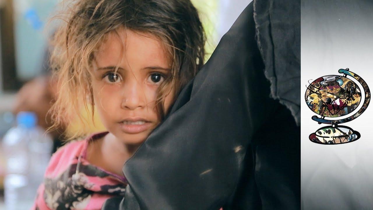 Yemen's Civil War Has Unleashed A Deadly Cholera Outbreak