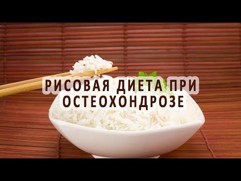 Правильное питание при остеохондрозе. Полезные и опасные
